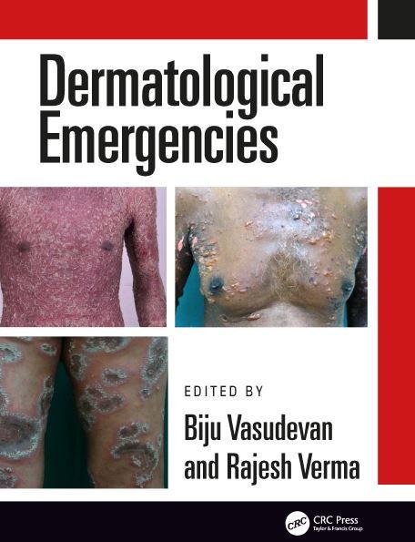 https://pickpdfs.com/dermatological-emergencies-pdf-download/