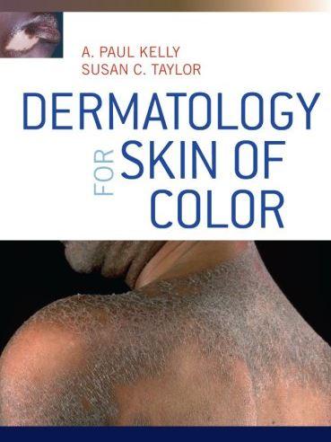 https://pickpdfs.com/dermatology-for-skin-of-color-pdf-download/