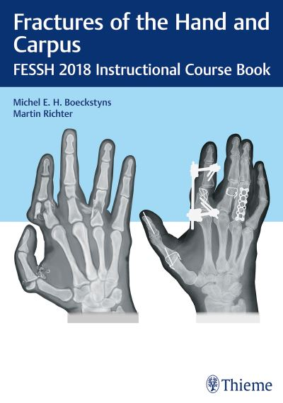 https://pickpdfs.com/fractures-of-the-hand-and-carpus-1st-edition-pdf-download/