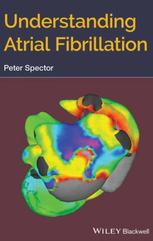 https://pickpdfs.com/understanding-atrial-fibrillation-pdf-free-pdf-pickpdfs-medical-books/