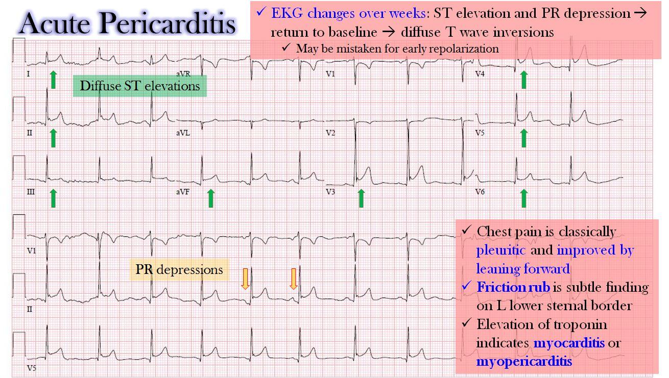 https://pickpdfs.com/ecg-changes-in-acute-pericarditis/