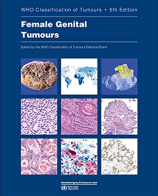https://pickpdfs.com/download-who-classification-of-tumours-female-genital-tumours-5th-edition-pdf-free/