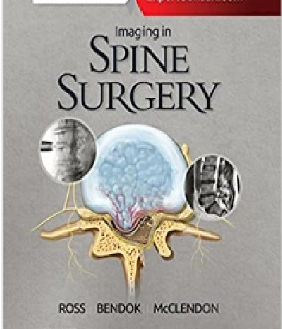 https://pickpdfs.com/imaging-in-spine-surgery-1st-edition-pdf-free-download-direct-link-2/